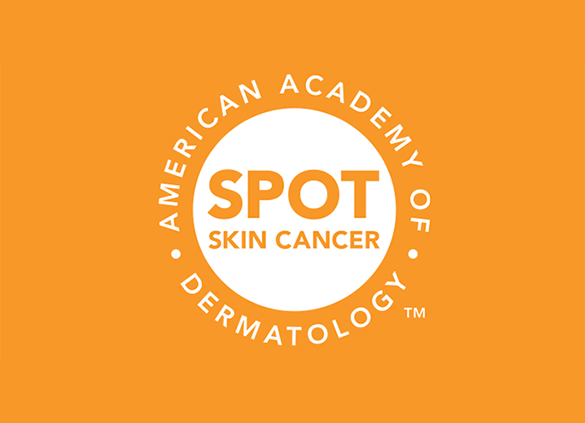 Body Mole Map from the American Academy of Dermatology