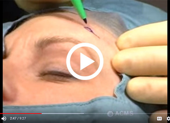 American College of Mohs Surgery (ACMS) Patient Education Video