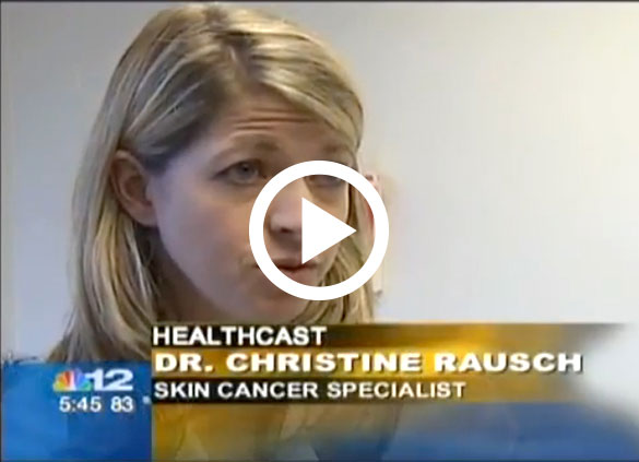 Dr. Christine Rausch discusses Mohs Surgery on Channel 12 News Richmond, VA
